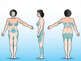 les zones du corps traitées par la liposuccion