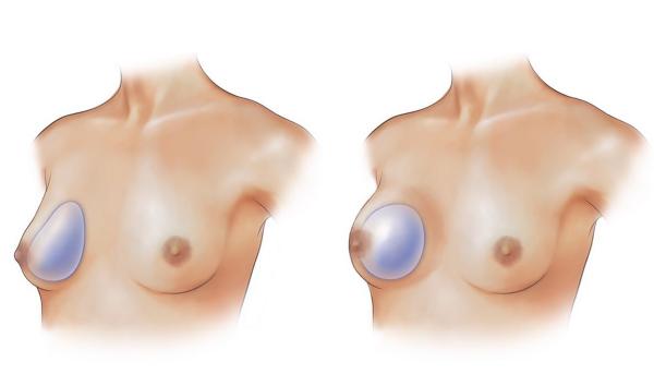 forme prothèse mammaire