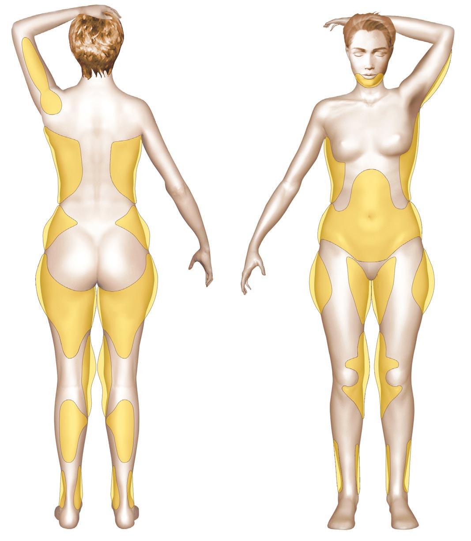 liposuccion zones