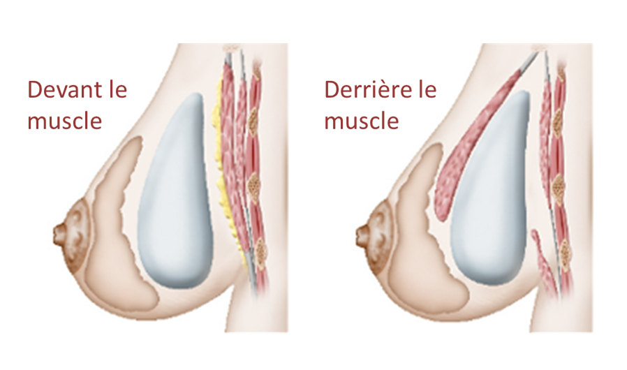 position muscle prothèse mammaire