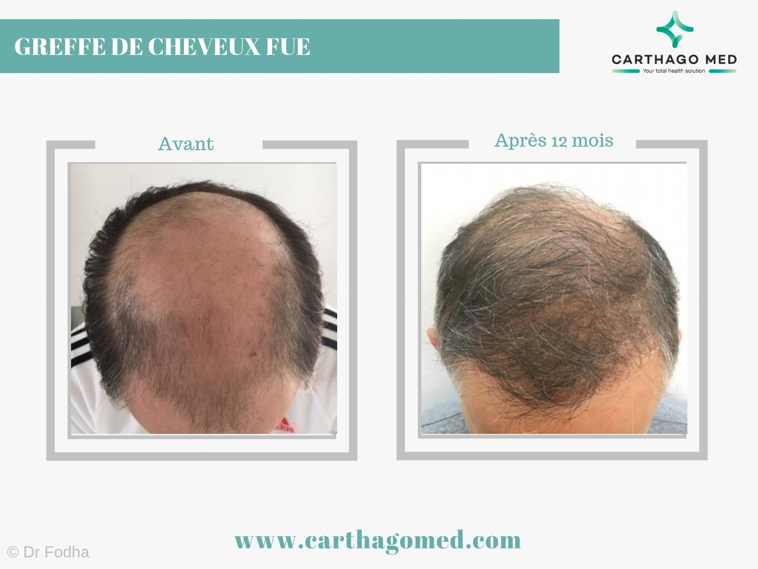 Greffe cheveux 3