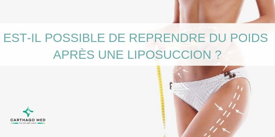 Reprendre-poids-après-liposuccion