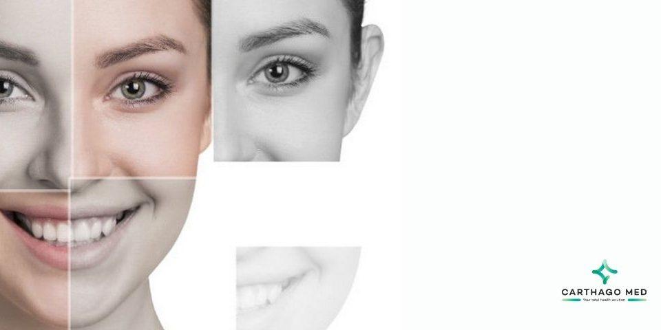correcting facial asymmetry