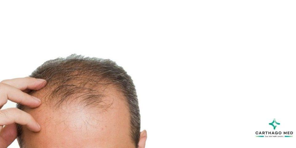 hair transplant technics