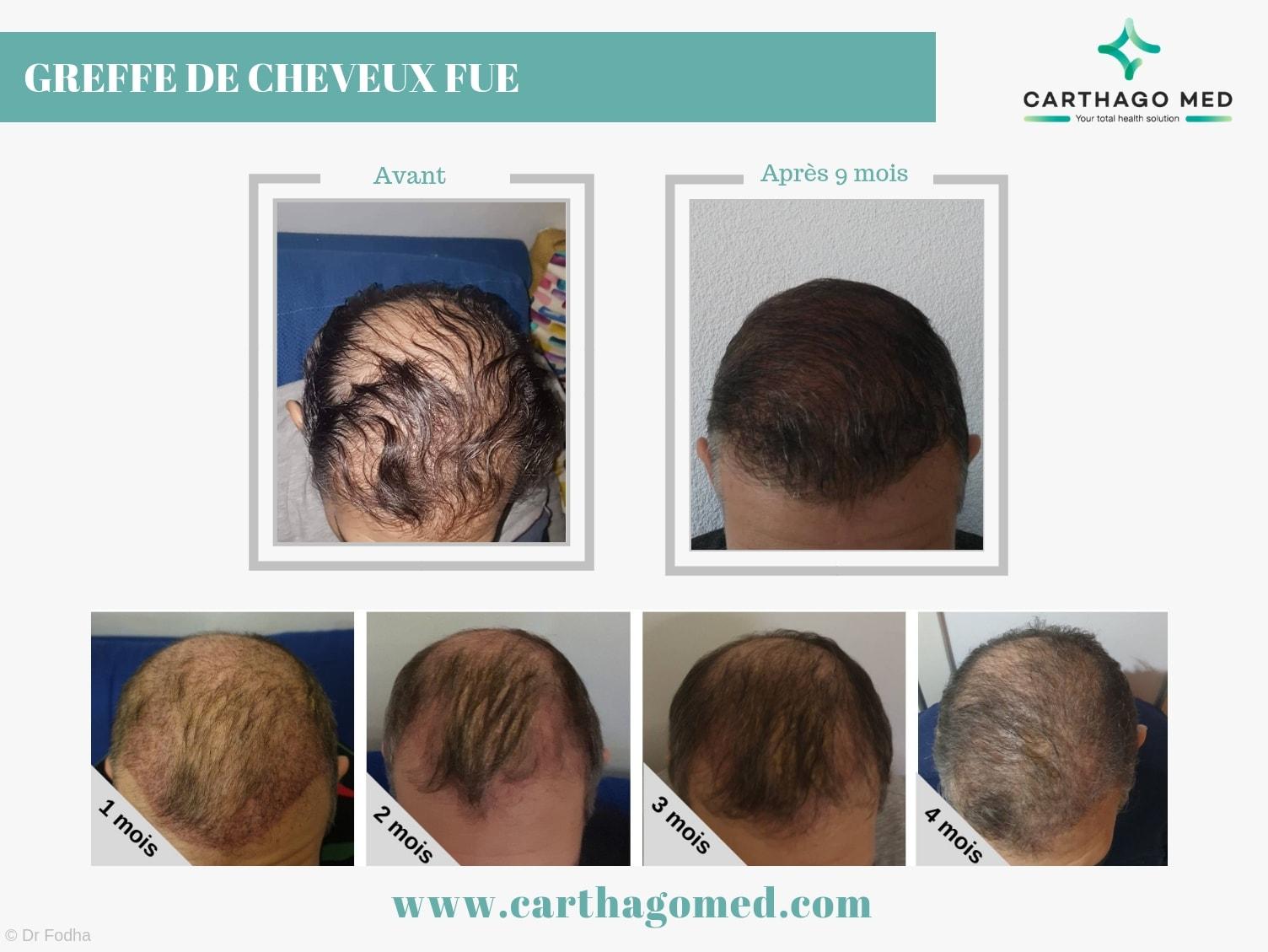 Greffe de cheveux 1 Carthago Med 5-min