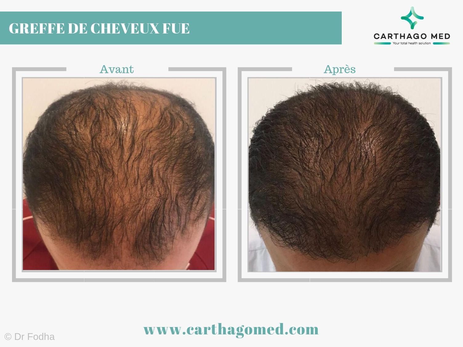 Greffe de cheveux 1 Carthago Med-min (1)