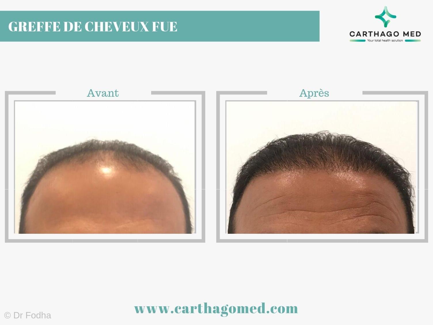 Greffe de cheveux 1 Carthago Med-min (2)