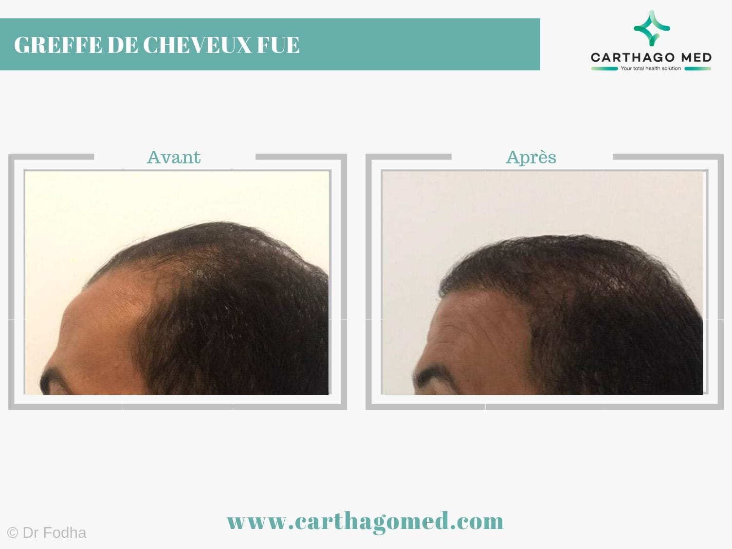 Greffe de cheveux 1 Carthago Med-min (3)