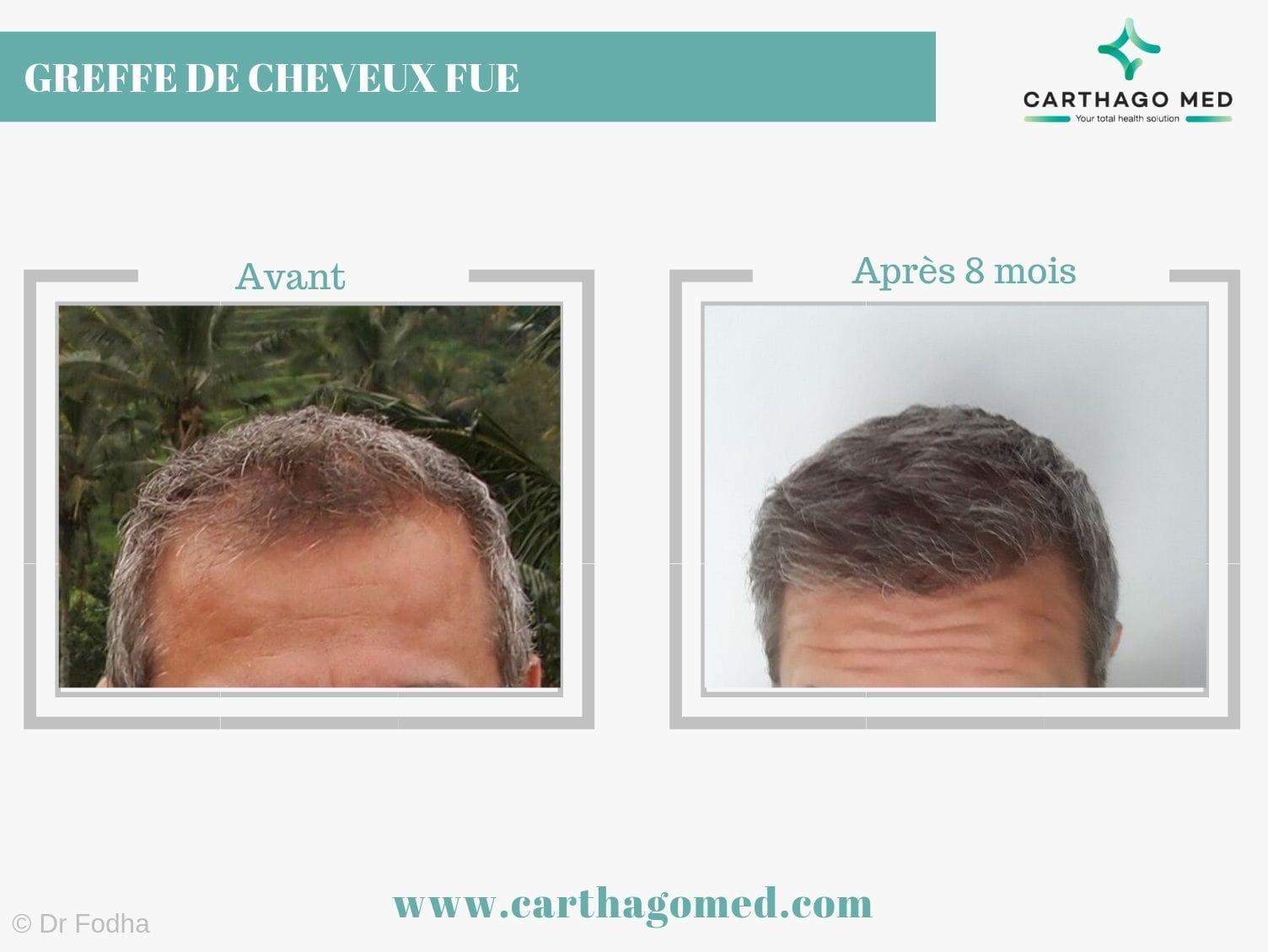 Greffe de cheveux carthago med (1)