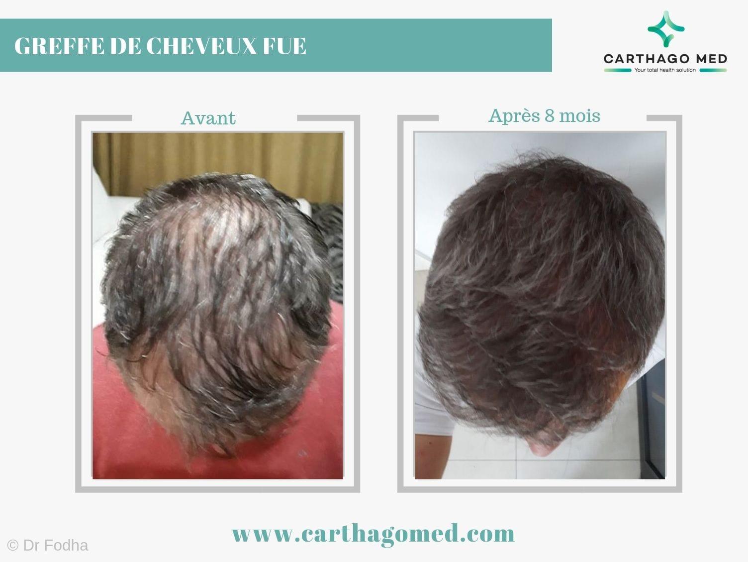 Greffe de cheveux carthago med (2)