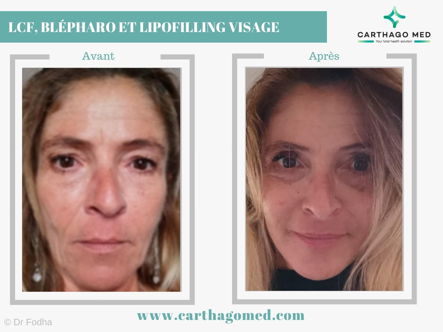 LCF Lipofilling visage et blépharoplastie