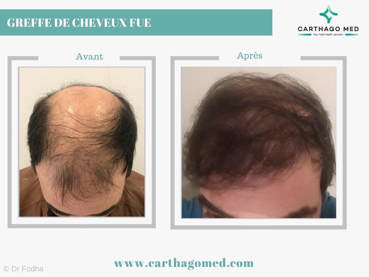 Greffe de cheveux FUE Carthago Med min (2)