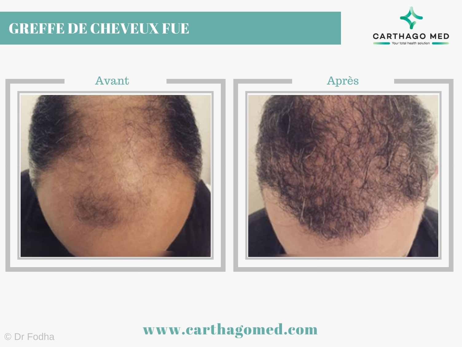 Greffe de cheveux FUE Carthago Med min (3)