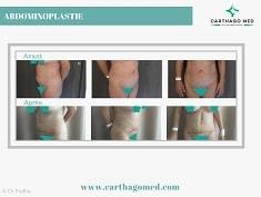 Abdominoplastie-Tunisie avant après (4)