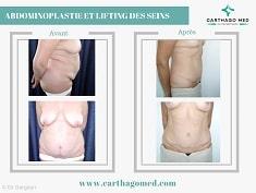 Abdominoplastie-Tunisie avant après (7)