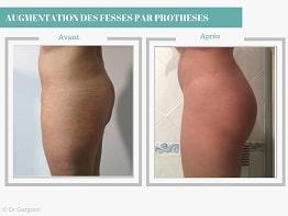 Augmentation-fesses-avec-prothèses-CARTHAGO-MED-3-min