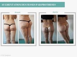 Augmentation-fesses-avec-protheses-CARTHAGO-MED-min-2