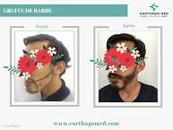 Greffe de la barbe Tunisie Avant Après (1)