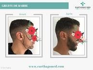 Greffe de la barbe Tunisie Avant Après (2)
