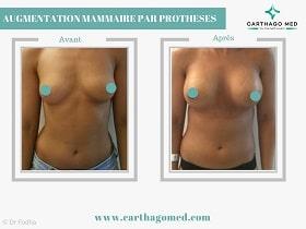 Prothèses mammaires Tunisie Avant Apres (10)