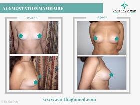 Prothèses mammaires Tunisie Avant Apres (4)