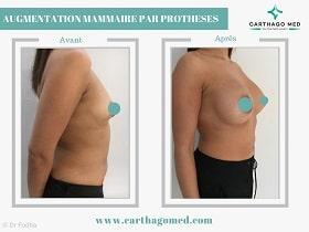 Prothèses mammaires Tunisie Avant Apres (7)