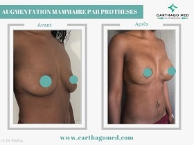 Prothèses mammaires Tunisie Avant Apres (8)