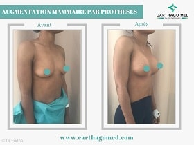 Prothèses mammaires Tunisie Avant Apres (9)