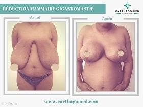 Réduction mammaire Tunisie Avant Apres (1)