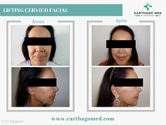 lifting cervco facial tunisie 3-min