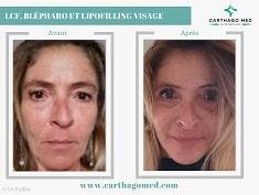 lipofilling visage blepharoplastie et lifting cervico facial-min