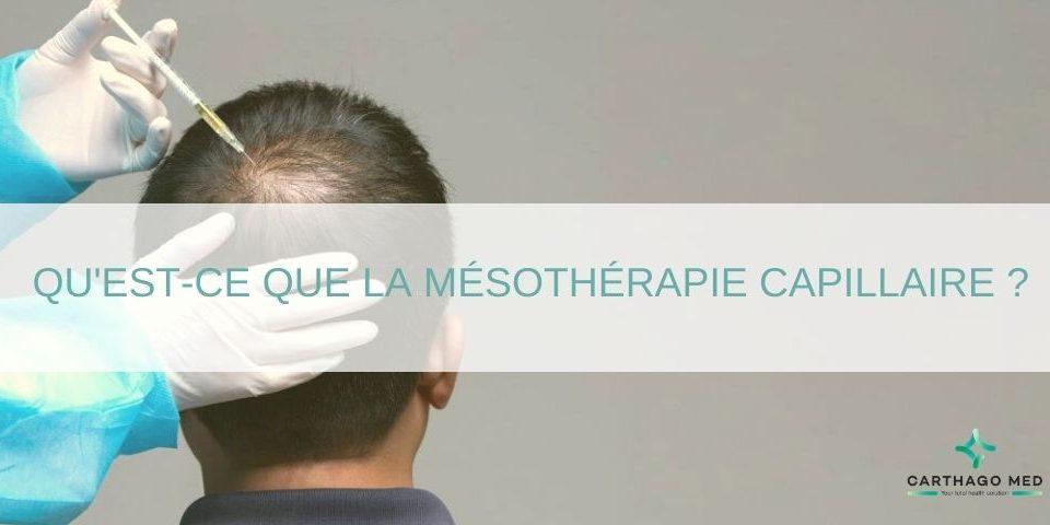 mesotherapie-cheveux