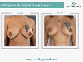 Lifting sein avec changement prothèses mammaires Tunisie Avant Apres