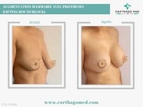 round block protheses seins